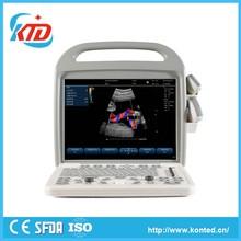 Hot Selling Digital Laptop Of Ultrasound Machine -----Konted C9