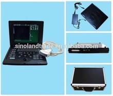 full digital laptop ultrasound scanner/handheld ultrasound scanner