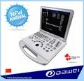 Médica pediátrica y equipo doppler color dw-c60 del ordenador portátil