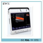 HOT sale Color Full Touchscreen Tablet Ultrasound scanner With 3D Software
