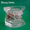transparente fda ortodôntico dental dentes de acrílico modelos