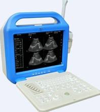 10% discount XF-US-LCD ultrasound scanner portable laptop/ Portable ultrasound scanner