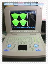3D full digital notebook computer ultrasound machine good price ATNL/200 free video printer converter and laptop bag