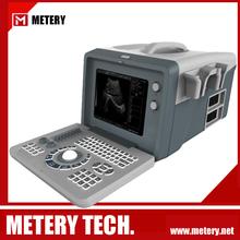 digital laptop ultrasound scanner