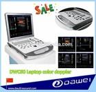 cheap color ultrasound laptop & portable dignostic ultrasound system