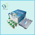 Humanos tiroxina neonatal, nn-t4 kit de elisa