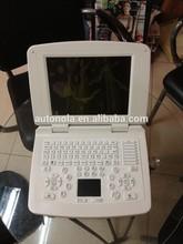 ATNL200 laptop 3D ultrasound scanner(10 inch screen)+free latop bag and printer converter