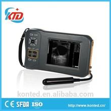 2014 New Digital Veterinary Portable Ultrasound Scanner For Sheep Pregnancy