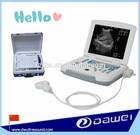 portable ultrasound scanner & mini ultrasound machine laptop