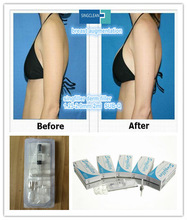 hot sale natural hyaluronate acid gel increase breast size buttocks size up