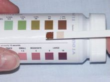 Reagent Strips for Urinalysis for In Vitro Diagnostic Use