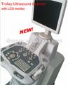 Xf-us-t ultrasons Usb prix de la sonde pour Ultasound Scanner