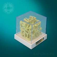 Plastic dual Osteoporosis model medical Bone density cube human anatomy model for teaching demonstration