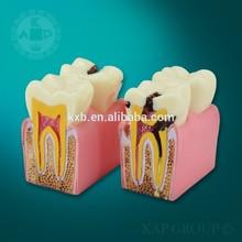 A06-006 Plastic human anatomical dental 3d teeth model