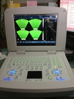 VET software ultrasonic scanner, 3D and PC, powerful measure software