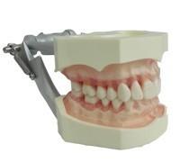 gingival dental teeth model for Prosthodontics Practice
