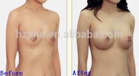 Hyaluronic Acid Gel Breast Enhancement