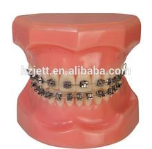 odontologica self ligating orthodontic brakets clinic dental equipment