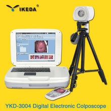 Hot sale Medical portable digital video colposcope India