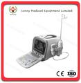 Sy-a002 todos- digital hospital portátil de ultra-som diagnóstico do equipamento