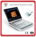 Sy-a039 3d4d usg full digital plus 4d Échographie 4d machine à ultrasons portable
