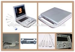 ultrasound manufacturer /Full Digital portable 4D ultrasound machine