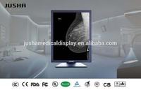 Jusha-M52C Mammography displays,clinical display,mammo