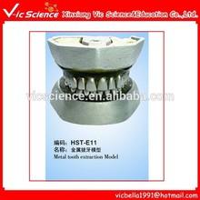 Metal teeth extraction model