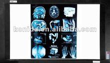 xray illuminator,x-ray accessories,x-ray illuminators