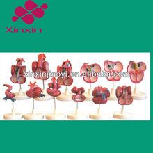 Heart Development (One set of 12 Pcs) model