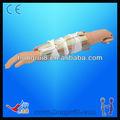 venda quente avançado modelo de formação médica do braço quebrado