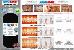 Oralmax