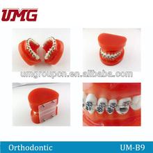Dental typodont orthodontic education model