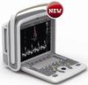 4D Portable Ultrasound