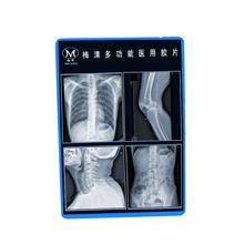 Meiqing x ray film disposal