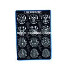 X-ray meiqing cr