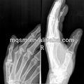 فيلم الأشعة السينية الزرقاء الحساسة/ ميتسوبيشي p550de/ الطبية الطابعات ميتسوبيشي