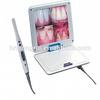 beat dental supply intraoral camera,dental sony intra oral camera,wireless intraoral camera