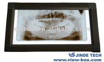 Supply x ray dental film viewer/ dental x ray equipment
