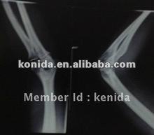 kodak medical film,Medical ct film(Konida-A)