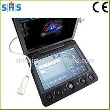 Sonoscape S9 Portable Color Ultrasound Scanner