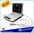 Dw-c60 medizinischen ultraschallgeräten& diagnosegerät ultraschall