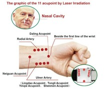 Hot sell 2014 new products laser quantum healing laser