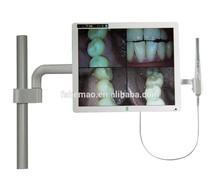"15"" super high definition multi-media dental intraoral camera"