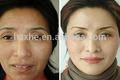personalizado de ácido hialurónico de relleno dérmico engordar la flacidez de la piel