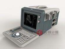 laptop full digital ultrasond scanner instrument