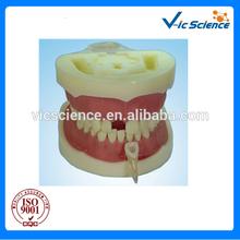 Root Canal Filling Model dental model