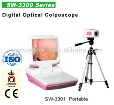 Vagina portable electronic Colposcope