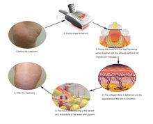 kuma shape kumashape rf vacuum infrared massage body slimming shaping velashape Beijing Sincoheren CE FDA approved equipment V8