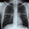 kodak medical x ray films 14x17
